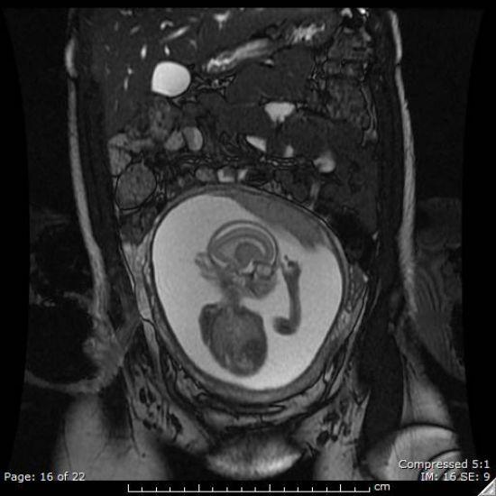 MRI pregnancy 18 week